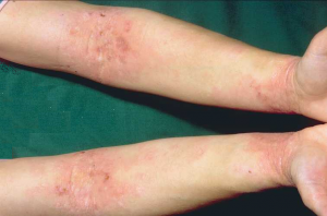 Atopic dermatitis 40